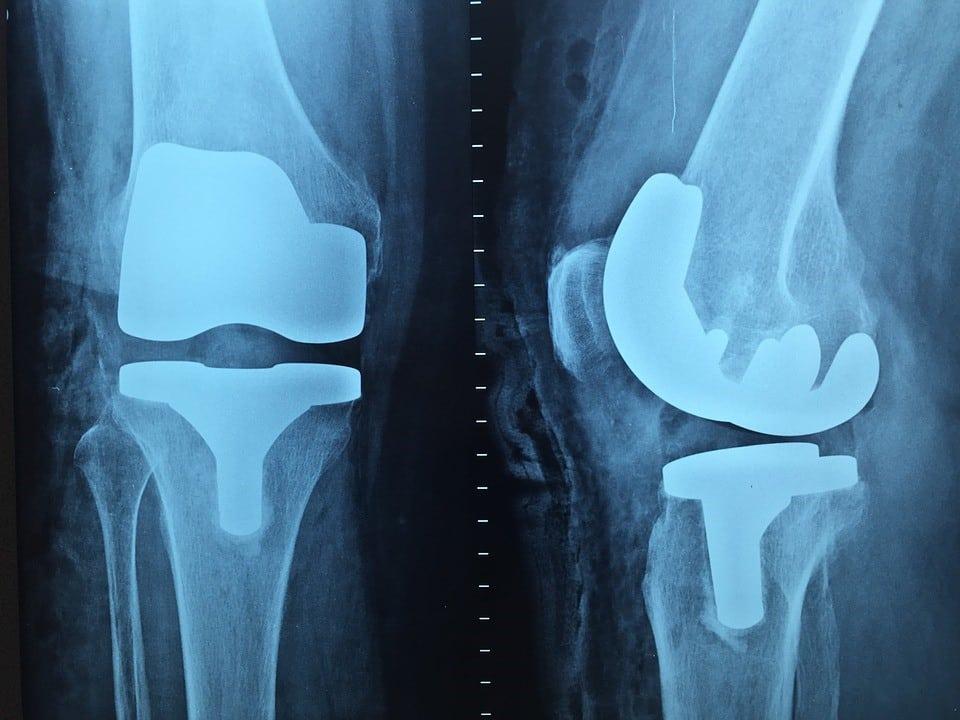 ortopeda Warszawa
