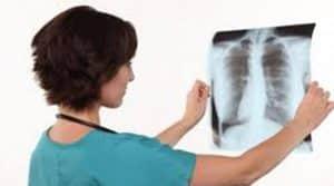 pulmonolog