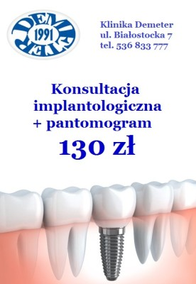 Dental-Implant-480x270