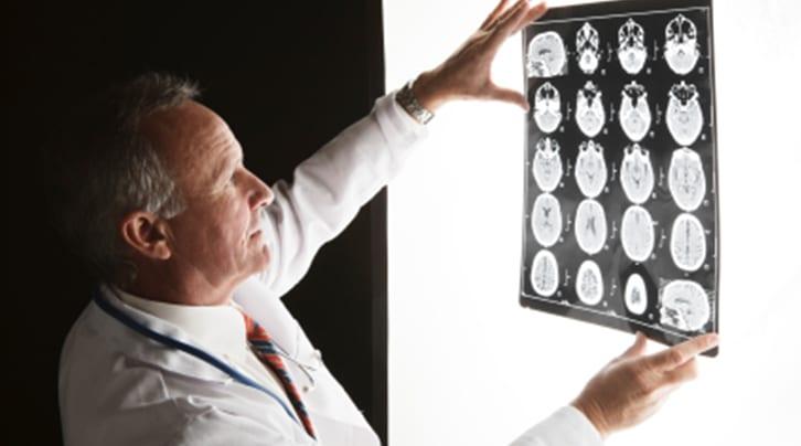 neurolog praga