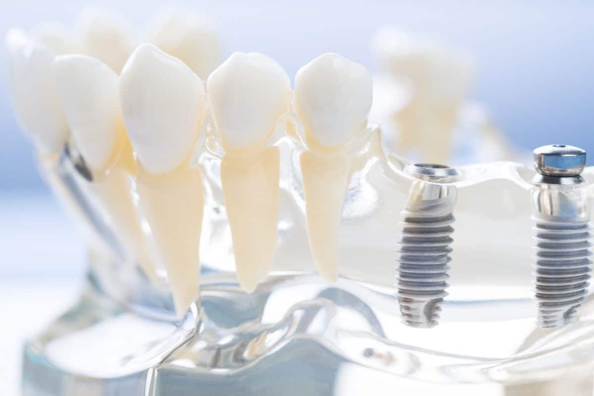 implanty zębowe warszawa praga żoliborz